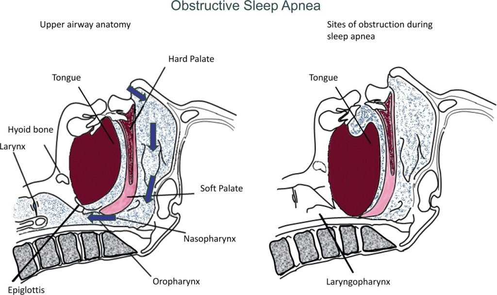 ( Upper Airway Obstruction in OSAS - Image Courtesy of advan.physiology.org )