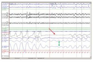 ( OSAS Analysis - Image Courtesy of emedicine.medscape.com )