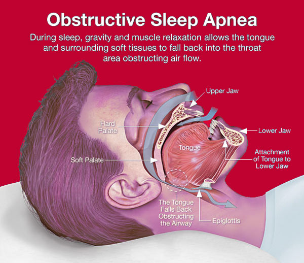 ( OSAS and Upper Airways - Image Courtesy of obstructive-sleep-apnea.info )