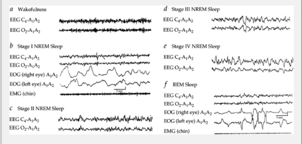 ( Sleep Stages by EEG-EOG-EMG - Image Courtesy of universitipetronas.hostoi.com )