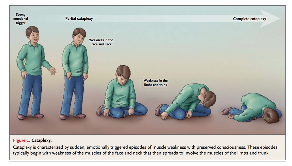 ( Cataplexy - Image Courtesy of www.imreference.com )