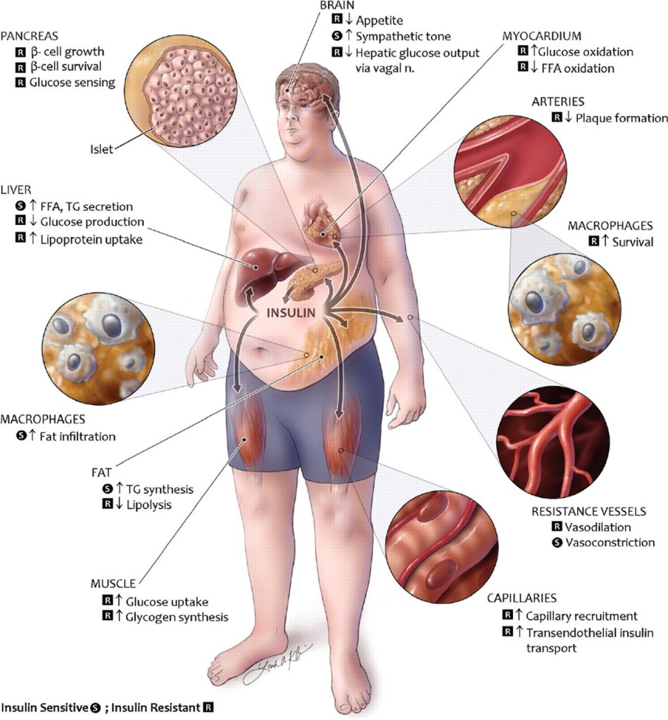 ( Metabolic Syndrome - Image Courtesy of www.livefitlean.com )