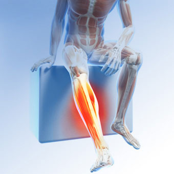 ( Restless Leg Syndrome - Limb Section - Image Courtesy of www.medicinenet.com )