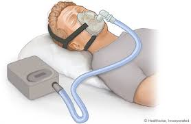 ( OSAS Treatment with CPAP Titration - Image Courtesy of www.webmd.com )