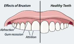 ( Bruxism - Image Courtesy of www.nordimplant.com )