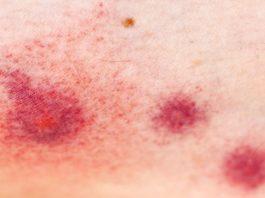 Latex Mattress Allergies